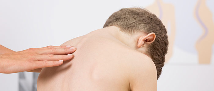 Chiropractic Eden Prairie MN Chiropractic Care For Scoliosis